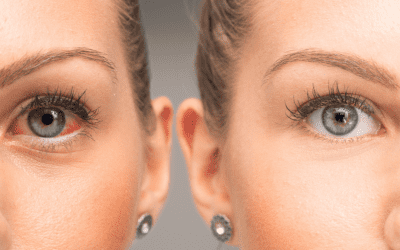 Best Contacts for Dry Eyes